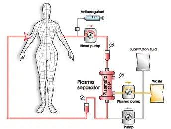 DFPP กรองของเสียที่สะสมในเลือด