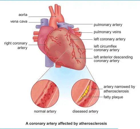 โรคหลอดเลือดหัวใจ HEART DISEASE