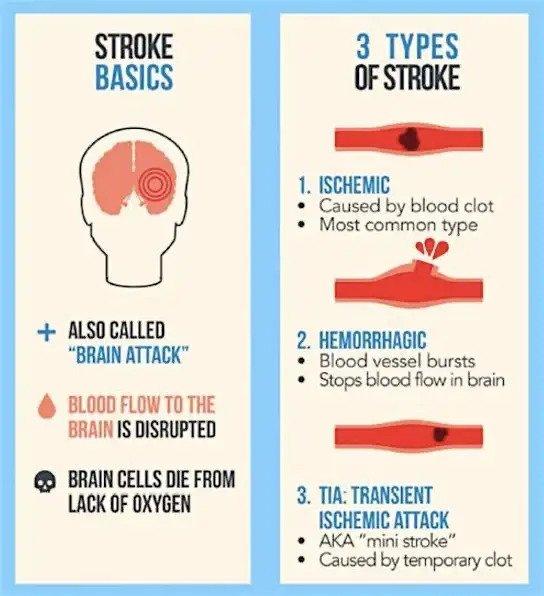 โรคหลอดเลือดสมองคืออะไร